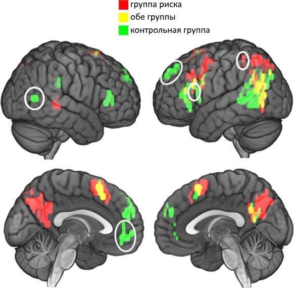Реакция мозга наопределенные слова определяет риск суицида— ученые