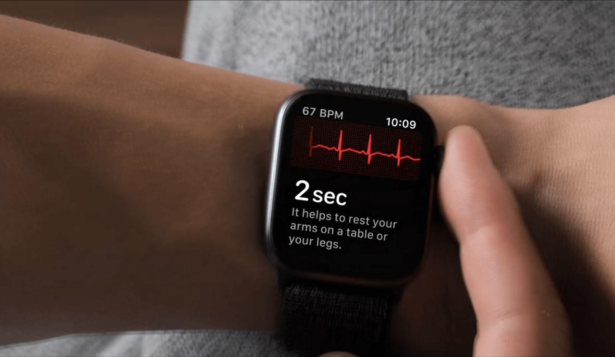 Пользователи Apple Watch в Украине с обновлением watchOS 7.6 получили поддержку ЭКГ