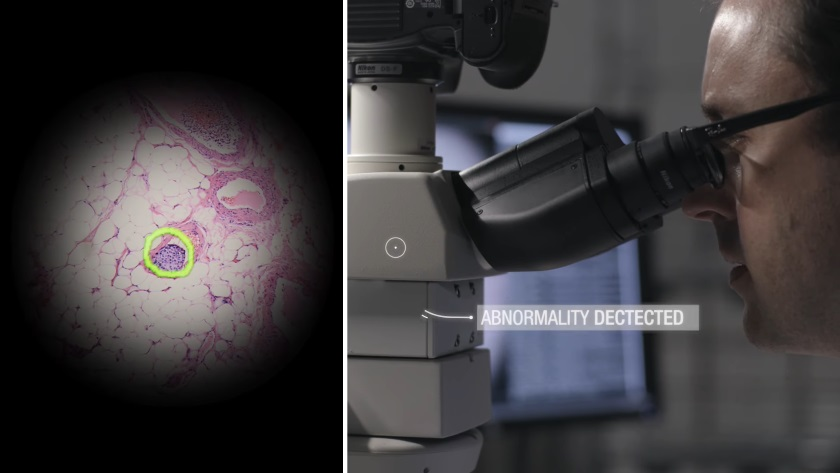 Smart Google microscope helps diagnose cancer